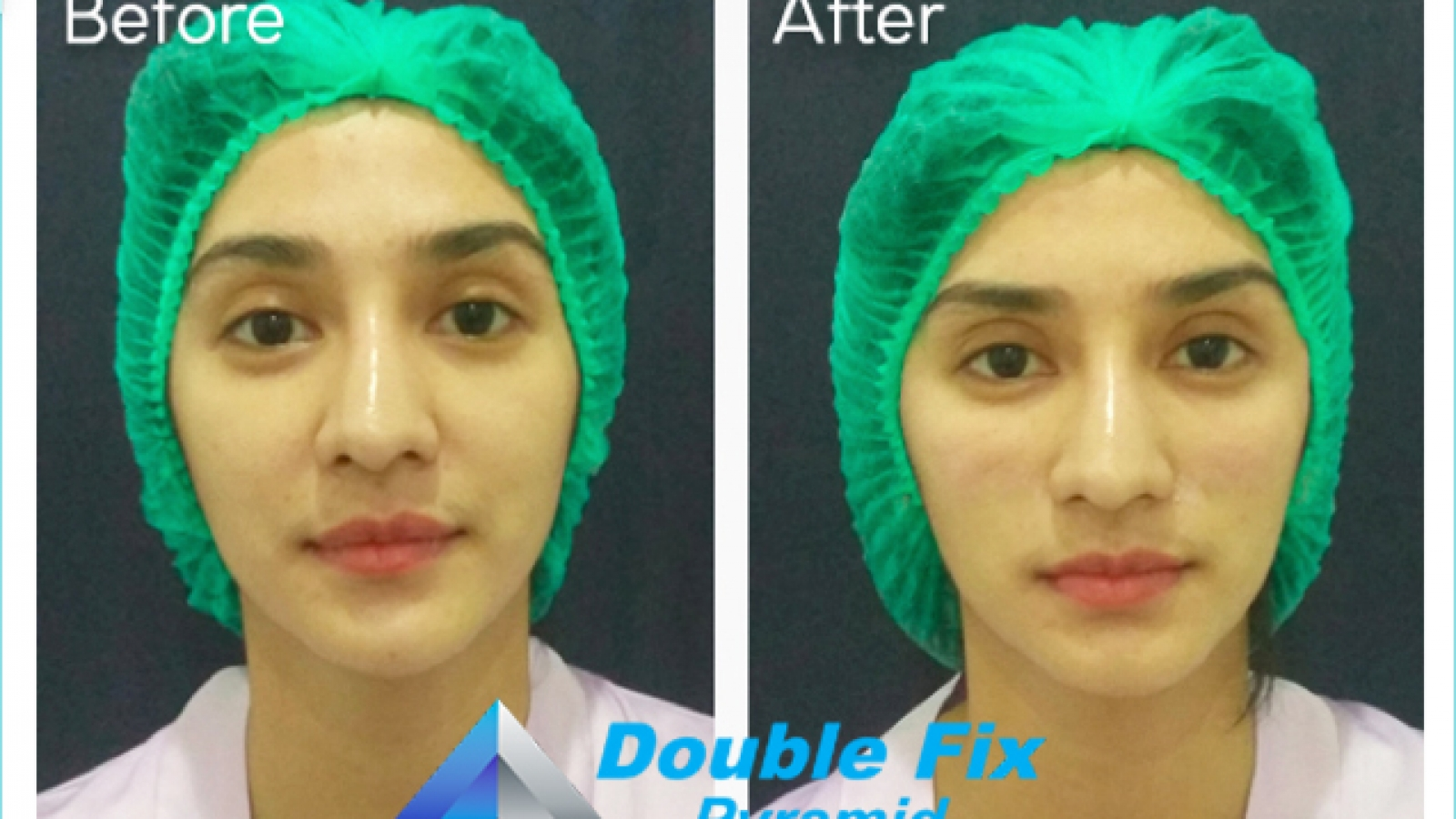 Double Fix For Celebrities - Fanny Ghasani