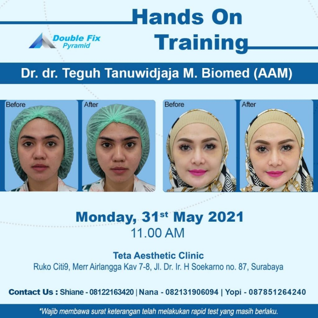 Double Fix Training On May 2021
